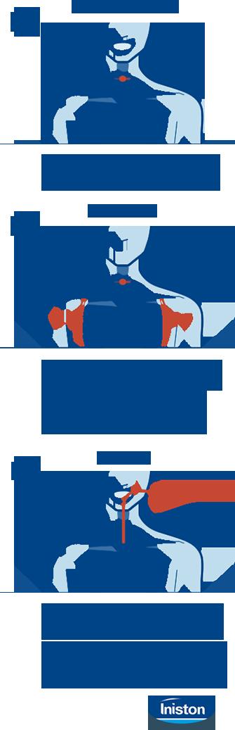 mecanismo de la tos